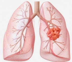 lung_cancer_02