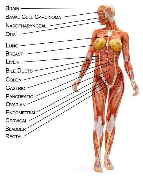 cancerdiagram